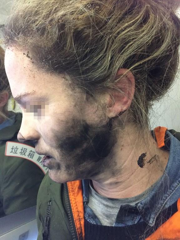 Mujer sufre quemaduras por explosión de audífonos