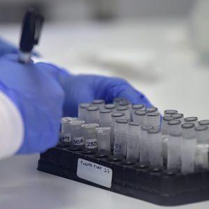 Plasma para tratar el Covid-19