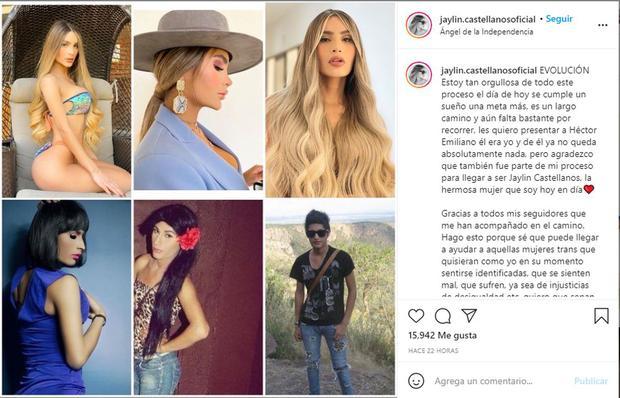 Jaylin Castellanos antes y después